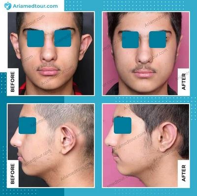 otoplasty in Iran before after photo
