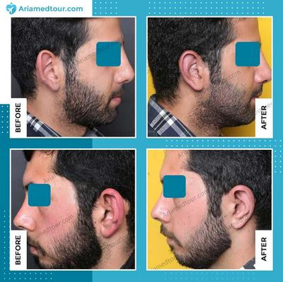ear surgery in Iran before after photo