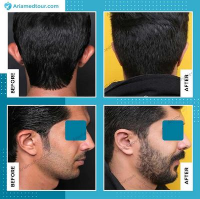 Iran ear surgery before after photo
