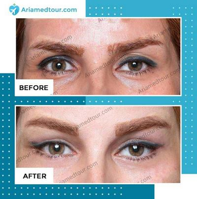 Eyelid Surgery in Iran before and after photo