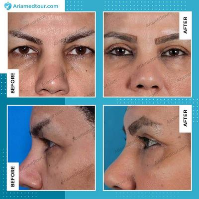 Eyelid Surgery before and after photo in Iran