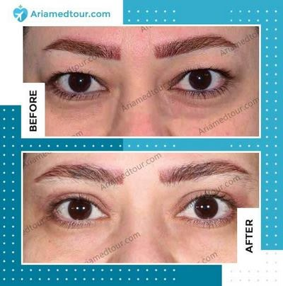 Blepharoplasty in Iran before and after photo