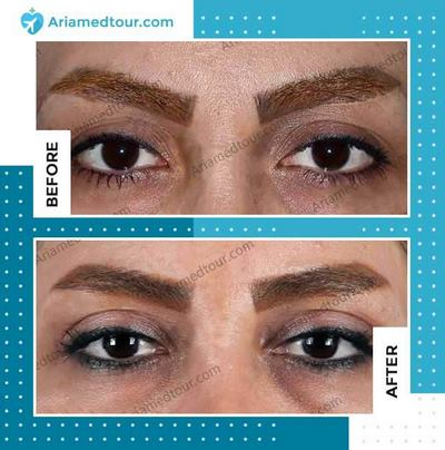 Blepharoplasty before and after photo in Iran
