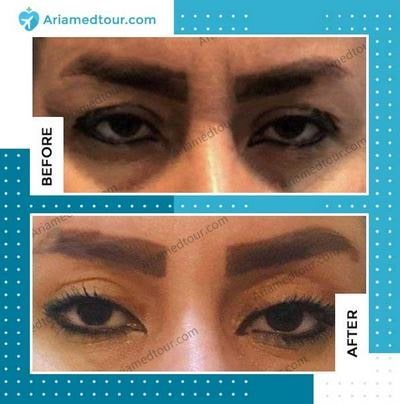 Eyelid Surgery (Blepharoplasty) before and after photo in Iran