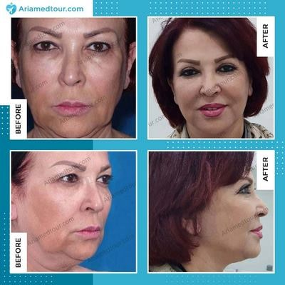 face lift surgery in Iran before after