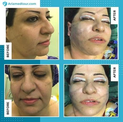 face lift surgery before and after photo in Iran