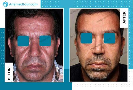 face lift before and after photo