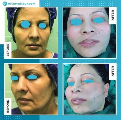 face lift before and after in Iran