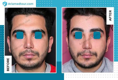 forehead contouring in Iran before after photo
