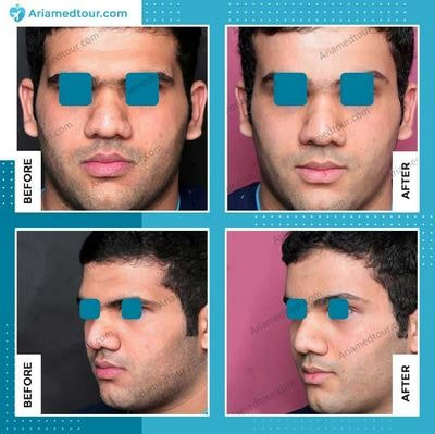 Iran forehead contouring before after photo