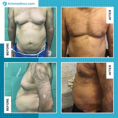 gynecomastia surgery in iran before and after