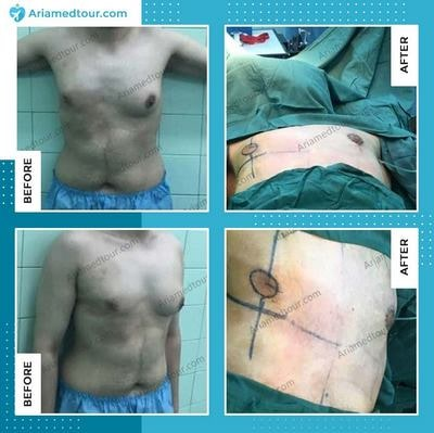 male breast reduction surgery before and after