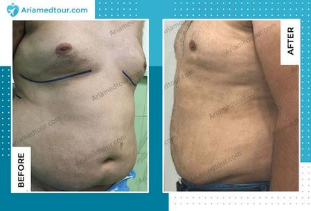 gynecomastia in iran before and after photo
