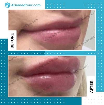 lip augmentation in Iran before and after photo