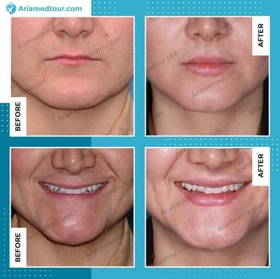 lip fillers before and after photo in Iran