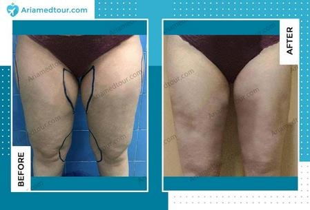 thigh lift before and after photo