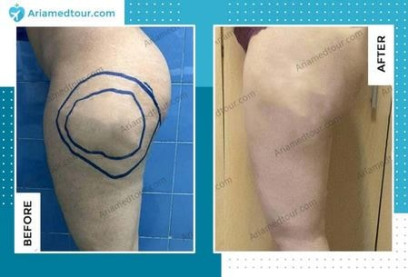 thigh lift in iran before and after photo