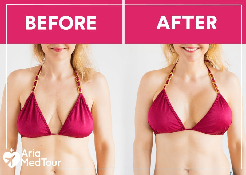 a woman with red bra, before and after her breast implants suregry photos