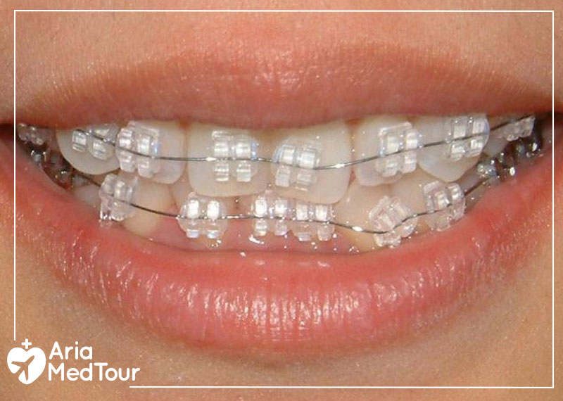 a woman with Ceramic (clear) braces