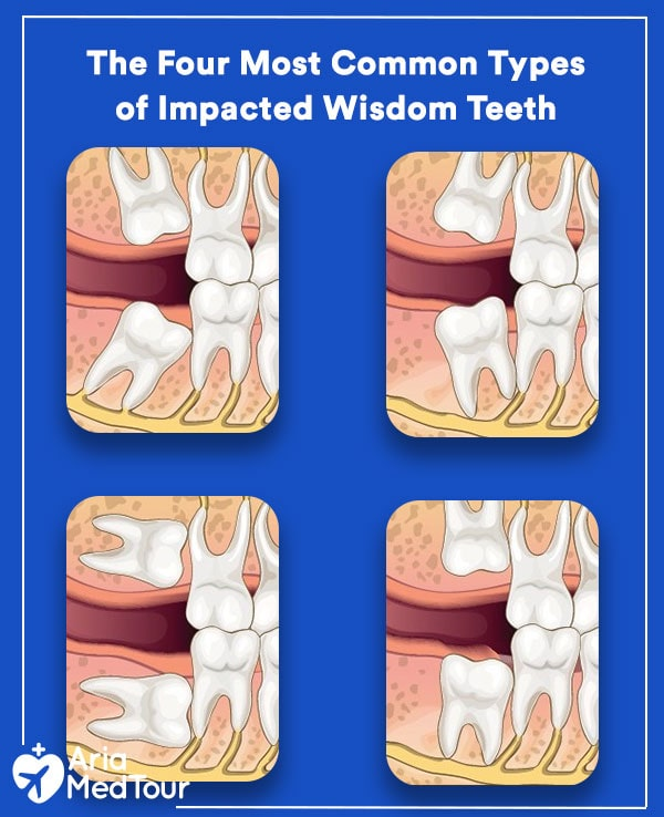 The Four Most Common Types of Impacted Wisdom Teeth