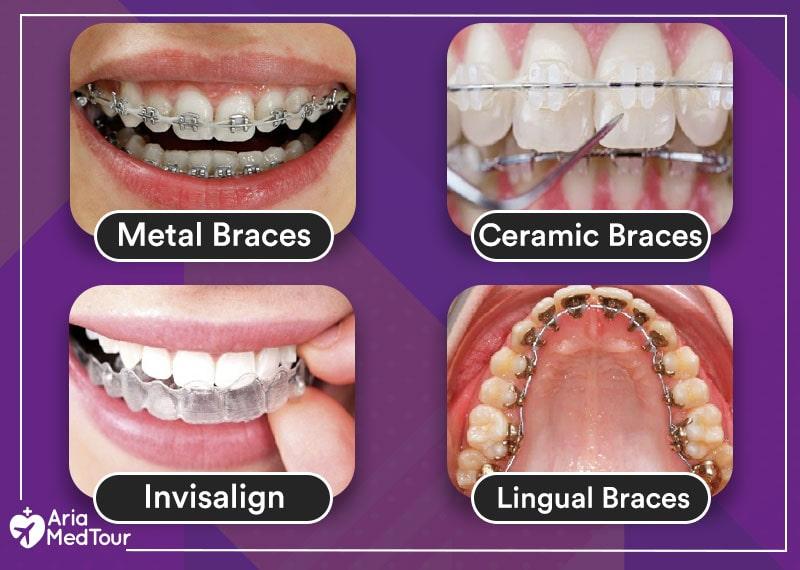 4 different braces types