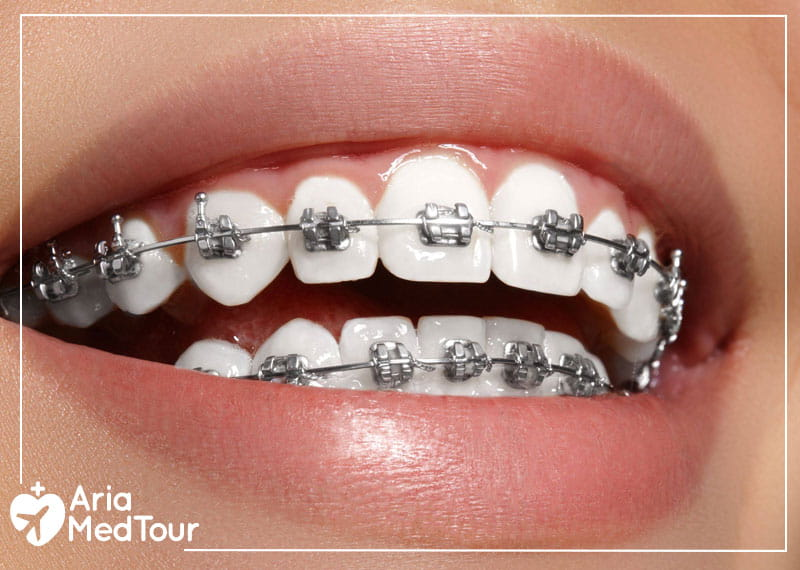 a woman with traditional metal braces